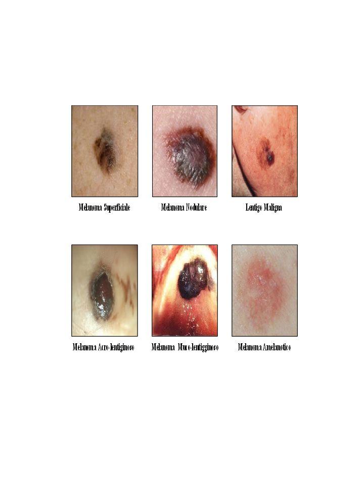 L'aspetto di ogni melanoma può variare ma, generalmente, mostrano tutti le caratteristiche definite ABCD Asimmetria: le due metà del neo non hanno stessa forma.