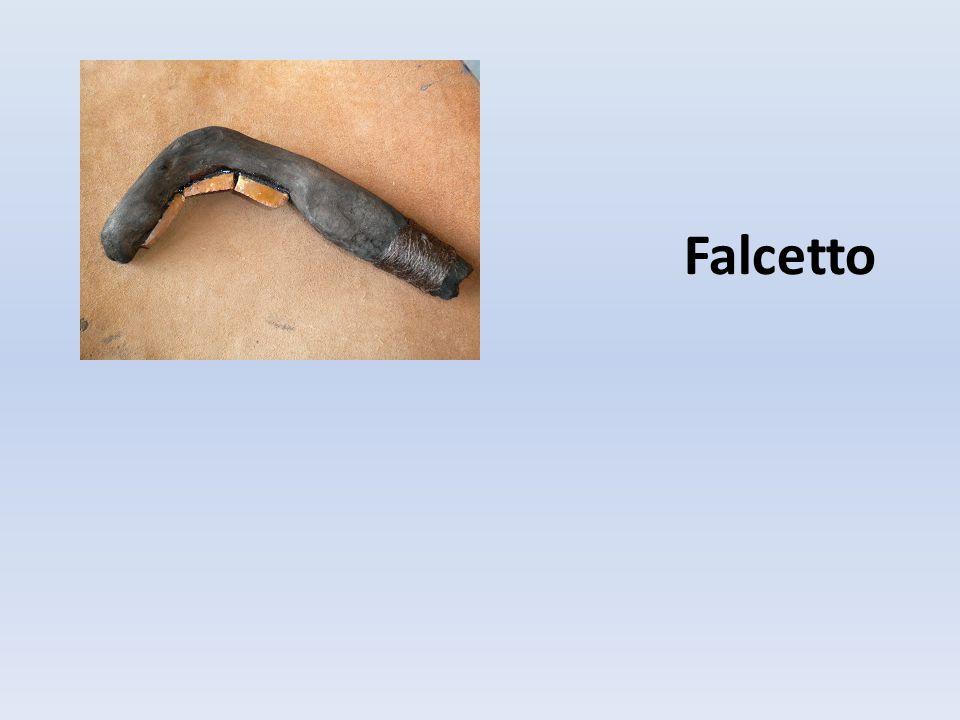 Falcetto