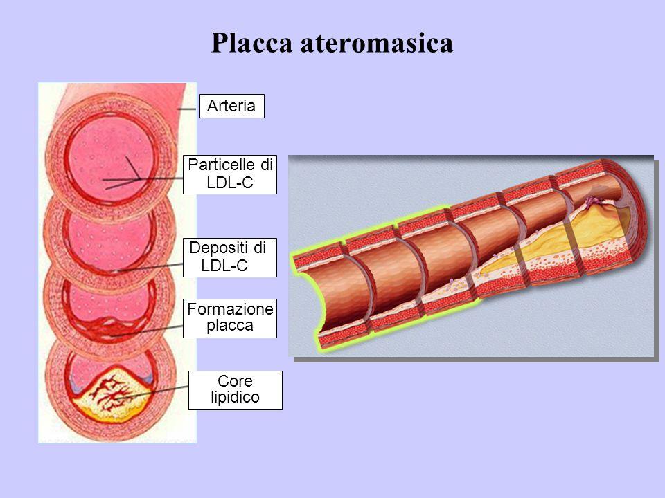 CARDIOPATIA ISCHEMICA Epidemiologia  I dati di morbosità non sono noti, ma sono stimati in Italia 150.000-160.000 eventi coronarici maggiori ogni anno.