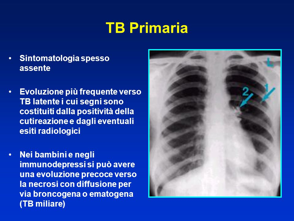 TB Primaria Sintomatologia spesso assente Evoluzione più frequente verso TB latente i cui segni sono costituiti dalla positività della cutireazione e