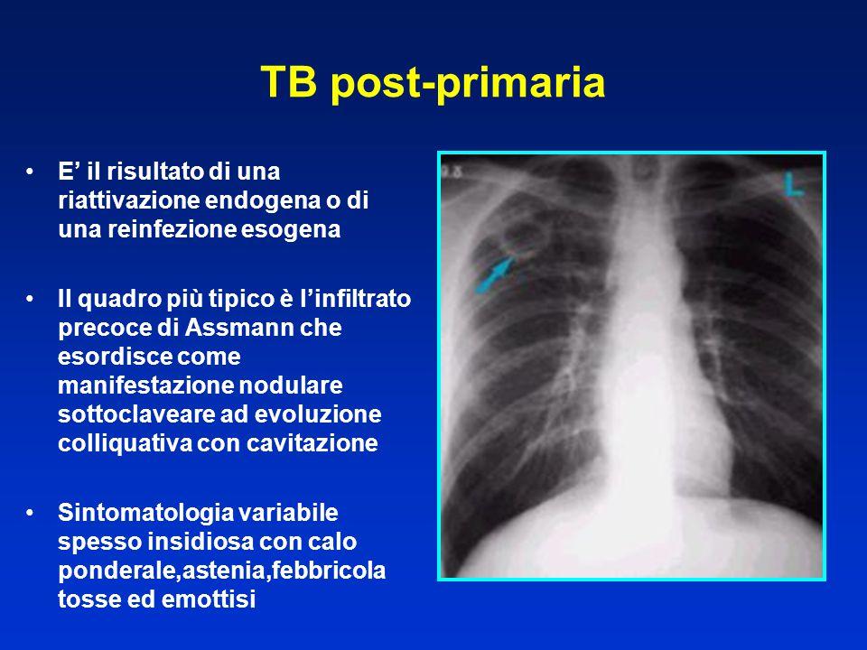 TB post-primaria E' il risultato di una riattivazione endogena o di una reinfezione esogena Il quadro più tipico è l'infiltrato precoce di Assmann che