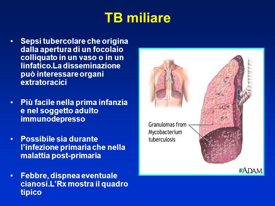 TB miliare Sepsi tubercolare che origina dalla apertura di un focolaio colliquato in un vaso o in un linfatico.La disseminazione può interessare organ
