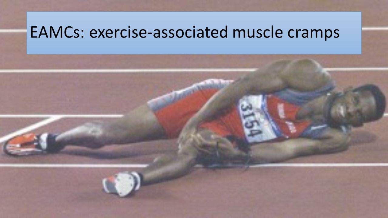 EAMCs: exercise-associated muscle cramps