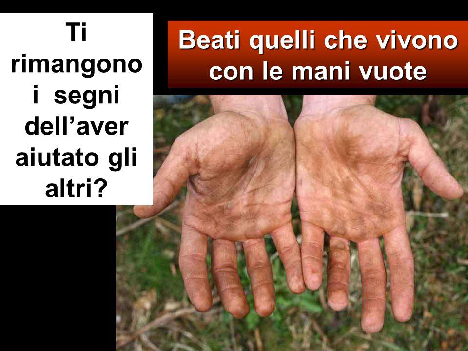 Beati quelli che vivono con le mani vuote Ti rimangono i segni dell'aver aiutato gli altri?
