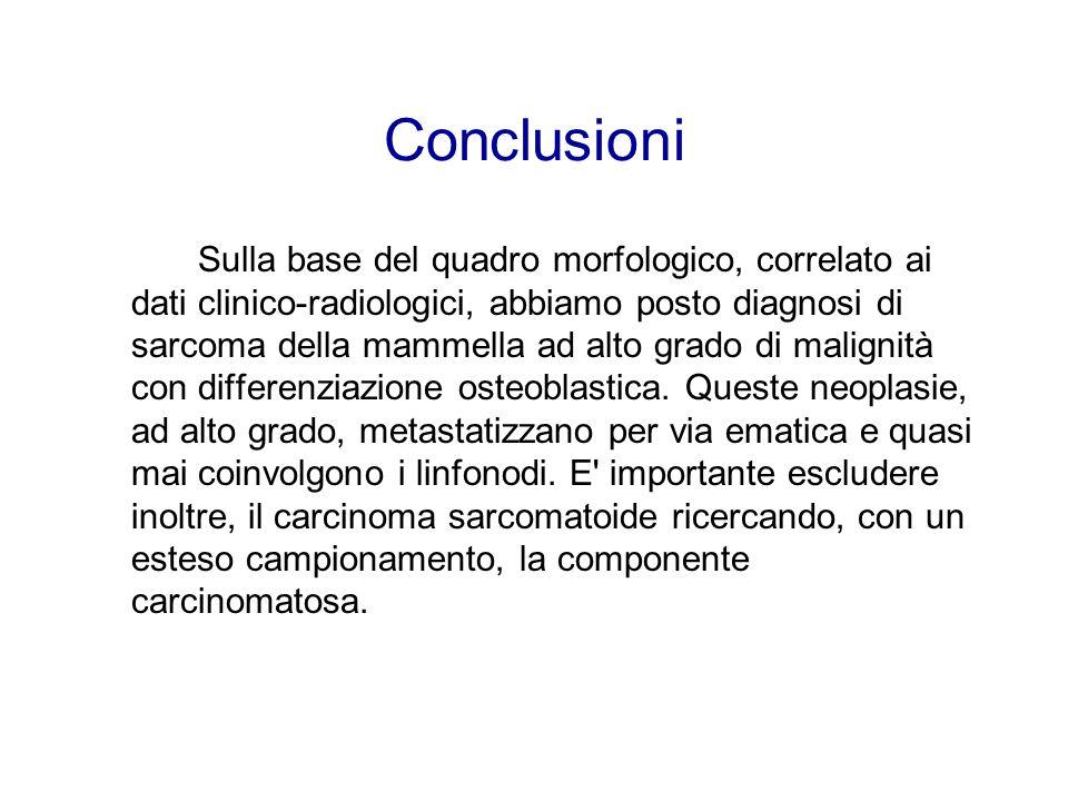Conclusioni Sulla base del quadro morfologico, correlato ai dati clinico-radiologici, abbiamo posto diagnosi di sarcoma della mammella ad alto grado di malignità con differenziazione osteoblastica.