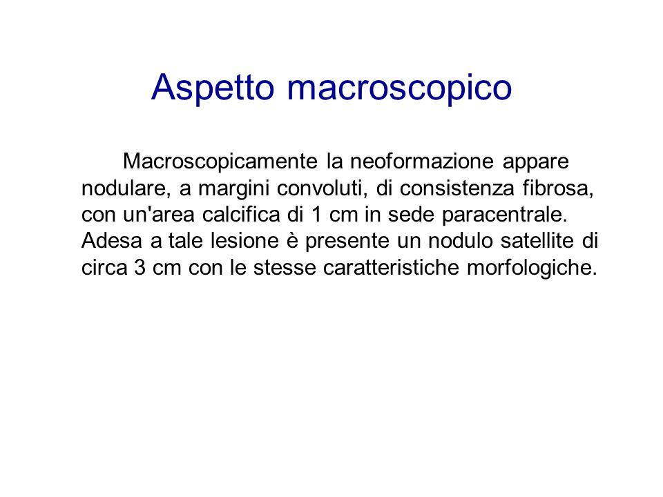 Aspetto macroscopico Macroscopicamente la neoformazione appare nodulare, a margini convoluti, di consistenza fibrosa, con un area calcifica di 1 cm in sede paracentrale.