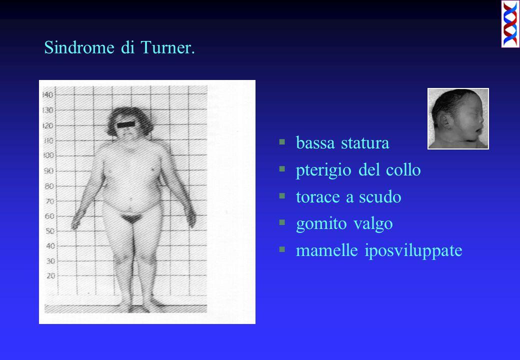 Sindrome di Turner. §bassa statura §pterigio del collo §torace a scudo §gomito valgo §mamelle iposviluppate