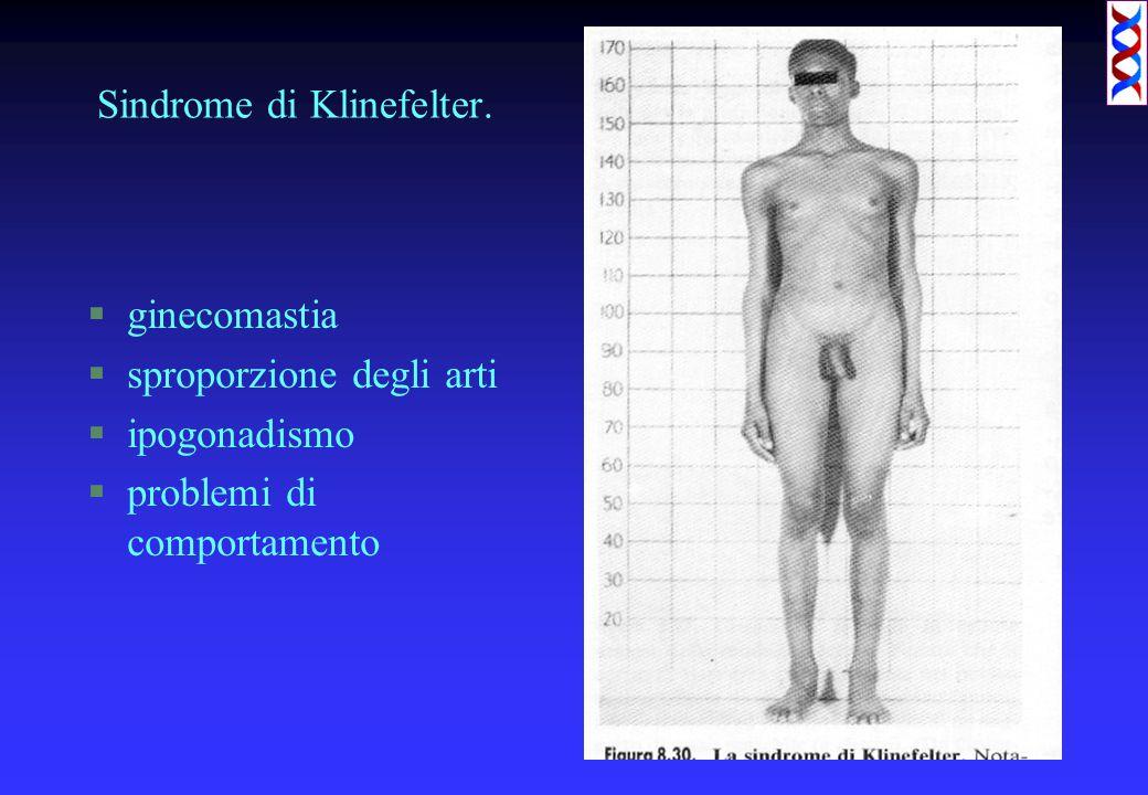 Sindrome di Klinefelter. §ginecomastia §sproporzione degli arti §ipogonadismo §problemi di comportamento