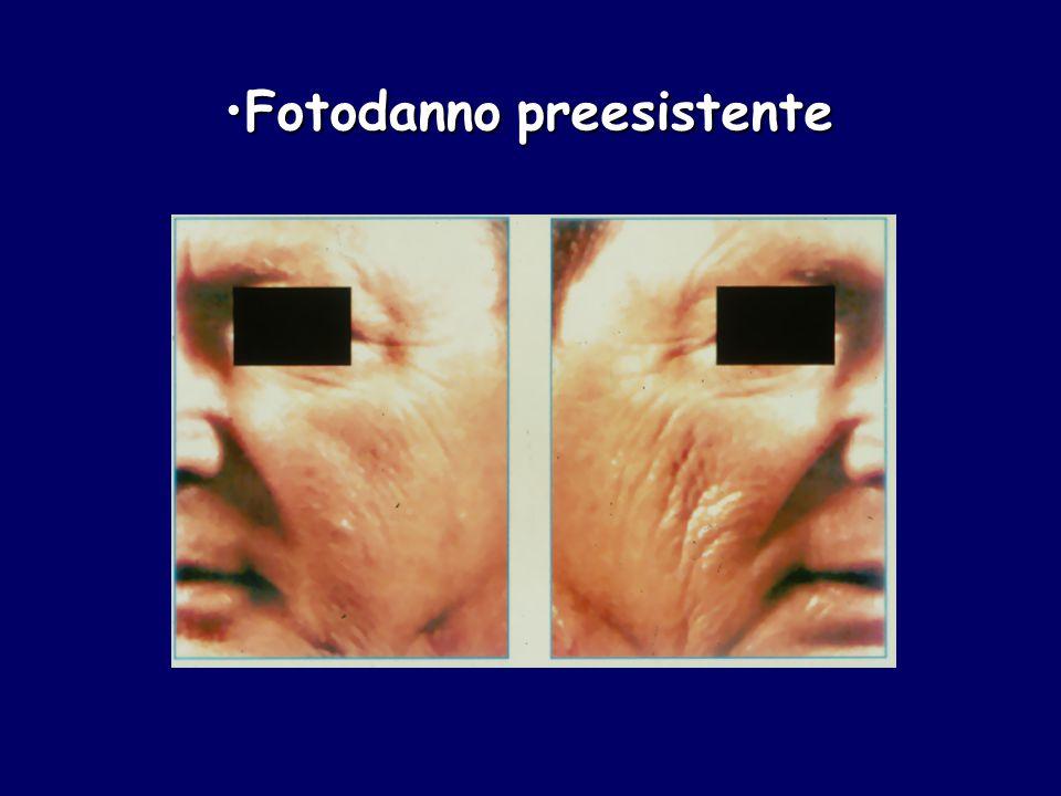rapporto eumelanine / feomelanine eumelanine / feomelanine sensibilità ad UV = feomelanine * Vincensi MR et al.(Univ.