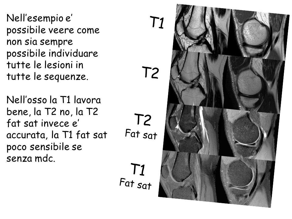 T1 T2 T1 Fat sat T2 Fat sat Nell'esempio e' possibile veere come non sia sempre possibile individuare tutte le lesioni in tutte le sequenze.