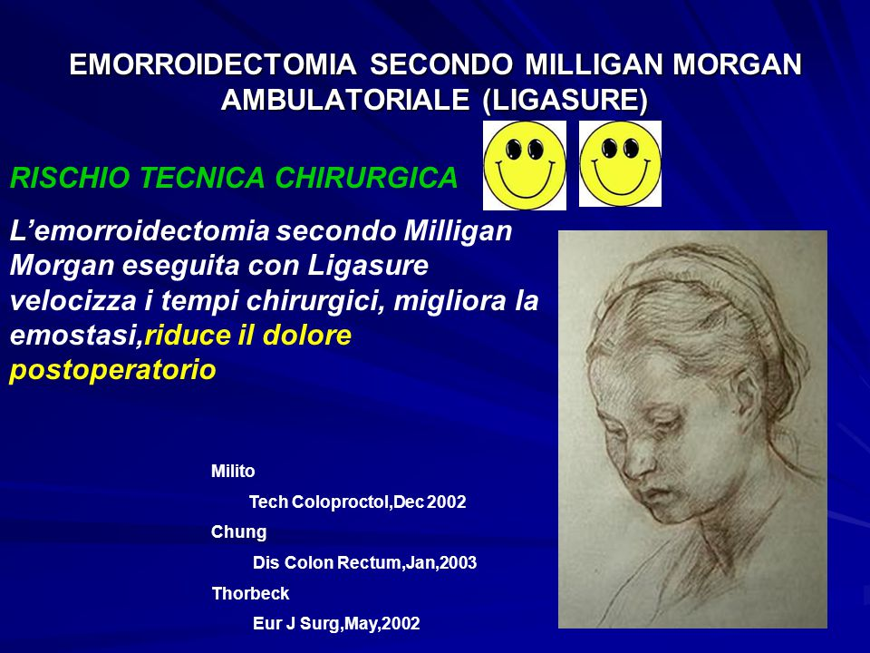 EMORROIDECTOMIA SECONDO MILLIGAN MORGAN AMBULATORIALE (LIGASURE) RISCHIO TECNICA CHIRURGICA L'emorroidectomia secondo Milligan Morgan eseguita con Ligasure velocizza i tempi chirurgici, migliora la emostasi,riduce il dolore postoperatorio Milito Tech Coloproctol,Dec 2002 Chung Dis Colon Rectum,Jan,2003 Thorbeck Eur J Surg,May,2002