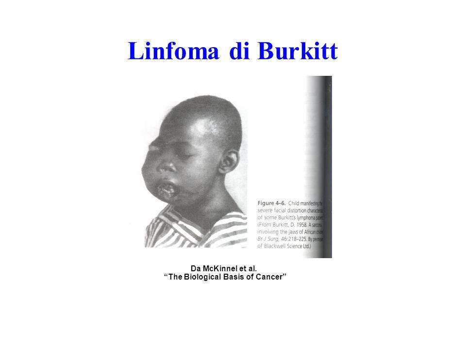 ALL L3/tipo Burkitt Leucemia linfatica B o tipo Burkitt.