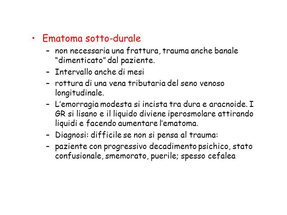 """Ematoma sotto-durale –non necessaria una frattura, trauma anche banale """"dimenticato"""" dal paziente. –Intervallo anche di mesi –rottura di una vena trib"""