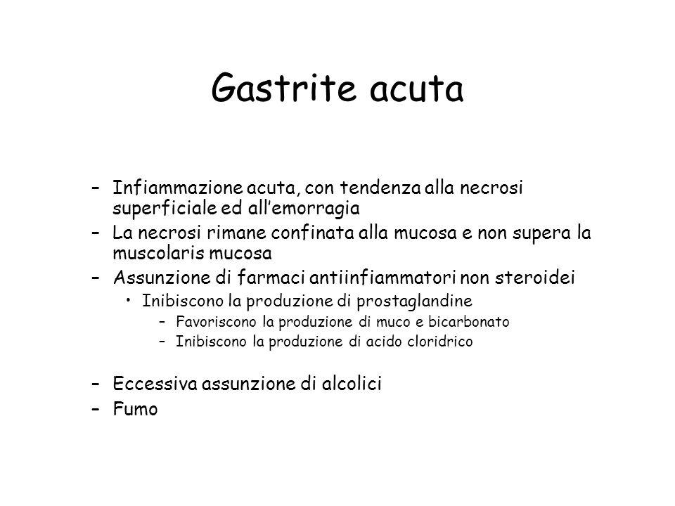 Gastrite acuta –Infiammazione acuta, con tendenza alla necrosi superficiale ed all'emorragia –La necrosi rimane confinata alla mucosa e non supera la