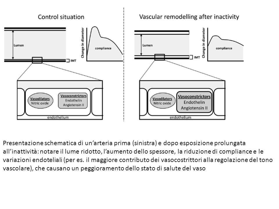 Presentazione schematica di un'arteria prima (sinistra) e dopo esposizione prolungata all'inattività: notare il lume ridotto, l'aumento dello spessore