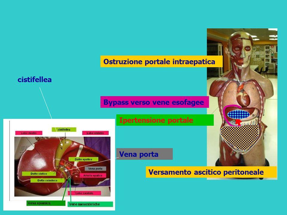 Ipertensione portale Ostruzione portale intraepatica Bypass verso vene esofagee Versamento ascitico peritoneale Vena porta cistifellea