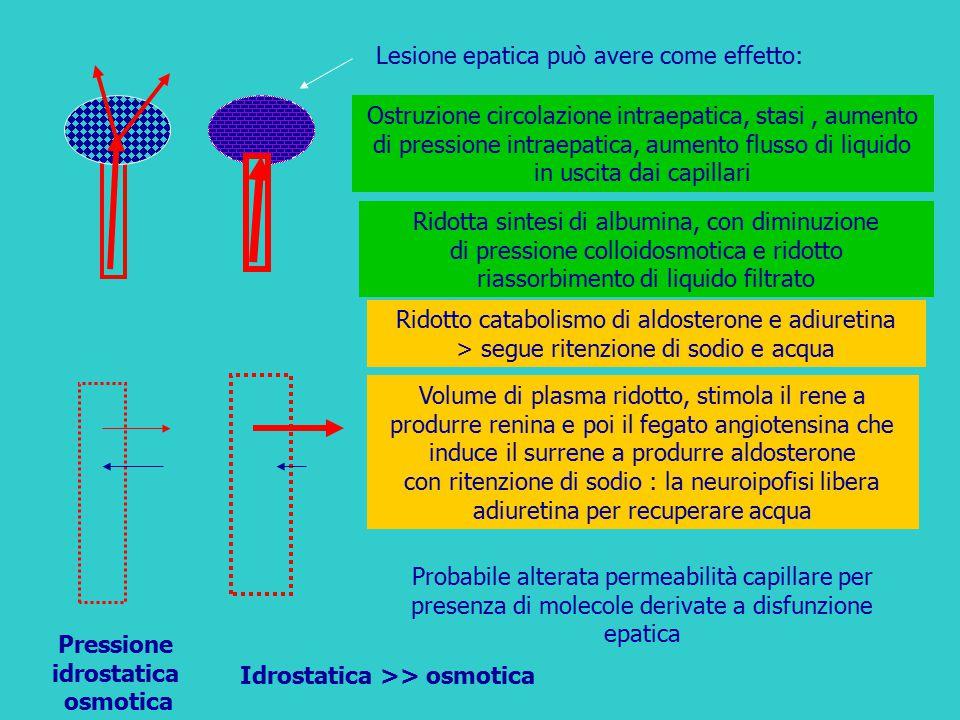 Lesione epatica può avere come effetto: Ridotto catabolismo di aldosterone e adiuretina > segue ritenzione di sodio e acqua Ridotta sintesi di albumin