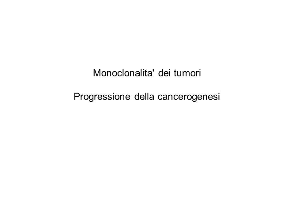 Monoclonalita' dei tumori Progressione della cancerogenesi