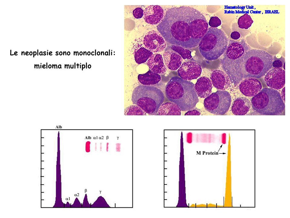 Le neoplasie sono monoclonali: mieloma multiplo