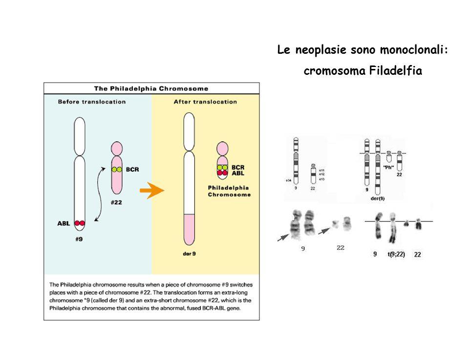 Le neoplasie sono monoclonali: cromosoma Filadelfia