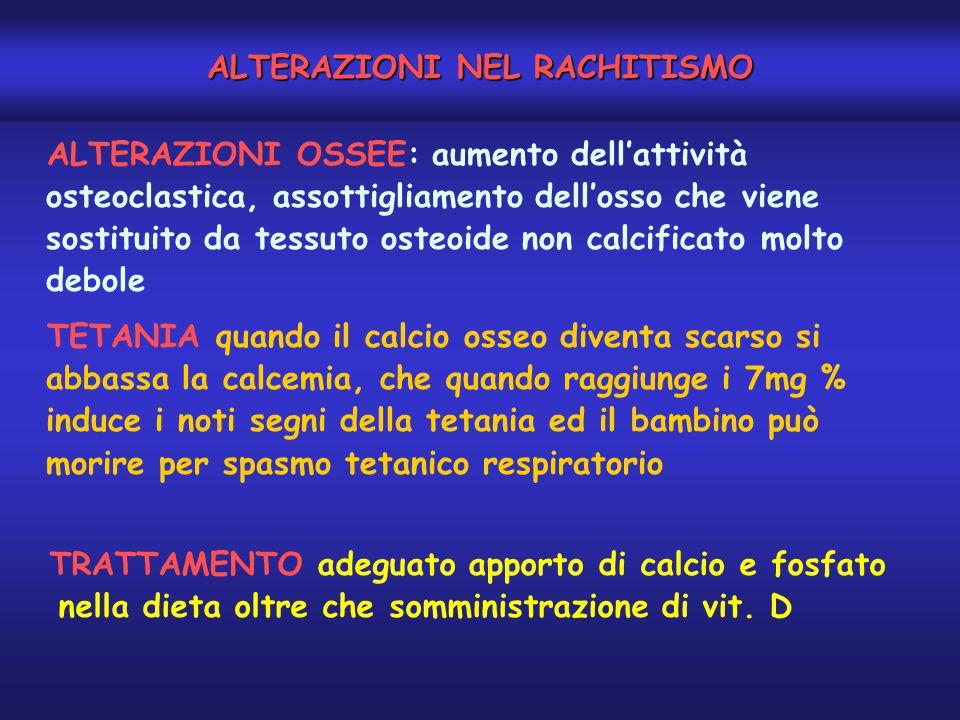 ALTERAZIONI NEL RACHITISMO ALTERAZIONI OSSEE: aumento dell'attività osteoclastica, assottigliamento dell'osso che viene sostituito da tessuto osteoide