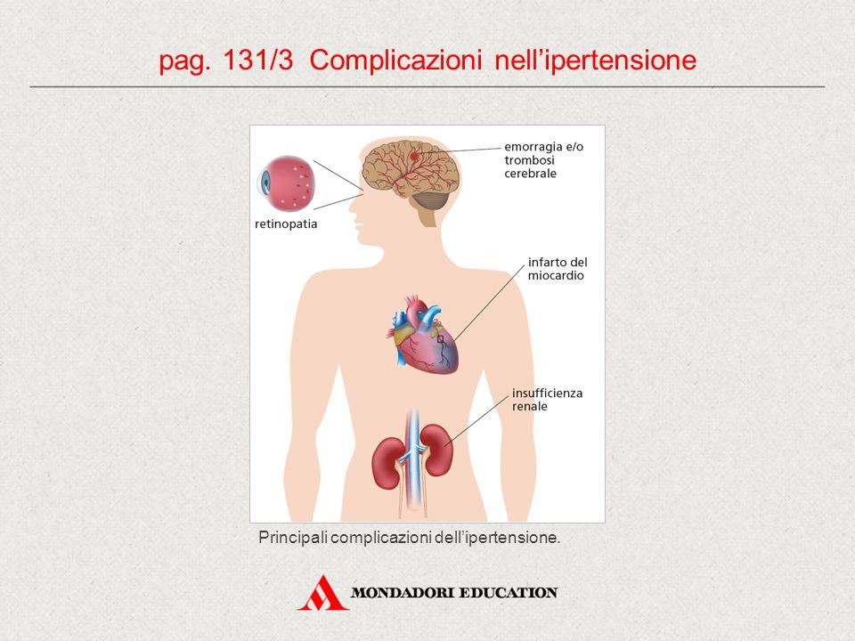 pag. 131/3 Complicazioni nell'ipertensione Principali complicazioni dell'ipertensione.