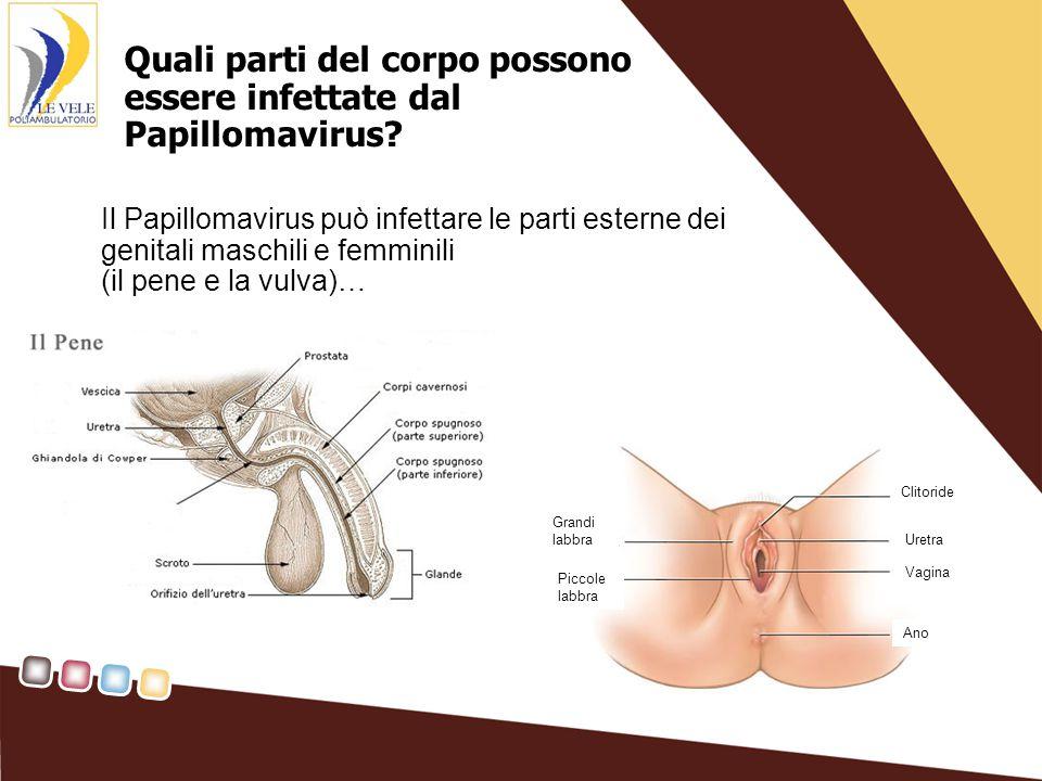 …oppure può colpire parti più interne dell'apparato genitale femminile (vagina e collo dell'utero) Tube di Falloppio Ovaio Cavità uterina Vagina Collo dell'utero