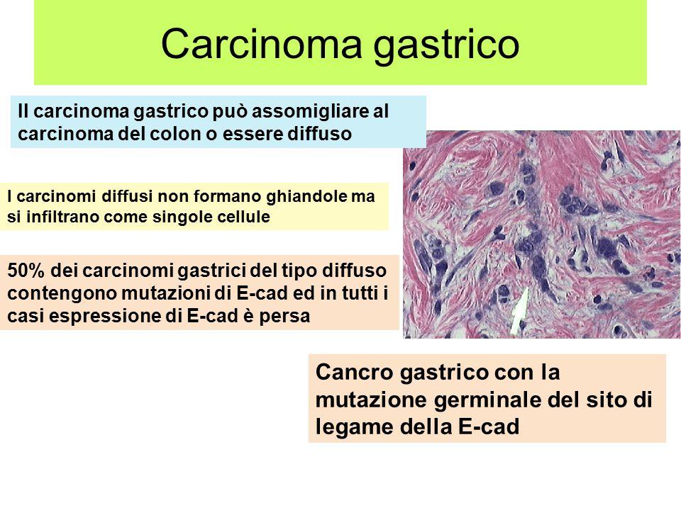 Carcinoma gastrico Il carcinoma gastrico può assomigliare al carcinoma del colon o essere diffuso I carcinomi diffusi non formano ghiandole ma si infiltrano come singole cellule 50% dei carcinomi gastrici del tipo diffuso contengono mutazioni di E-cad ed in tutti i casi espressione di E-cad è persa Cancro gastrico con la mutazione germinale del sito di legame della E-cad