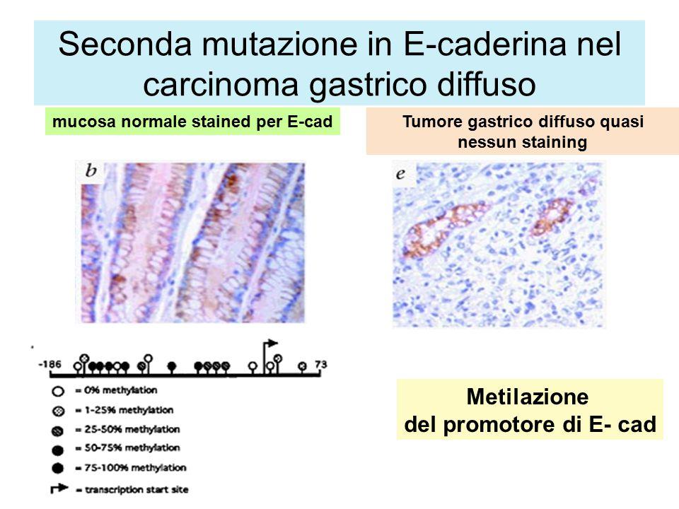 Seconda mutazione in E-caderina nel carcinoma gastrico diffuso mucosa normale stained per E-cadTumore gastrico diffuso quasi nessun staining Metilazione del promotore di E- cad