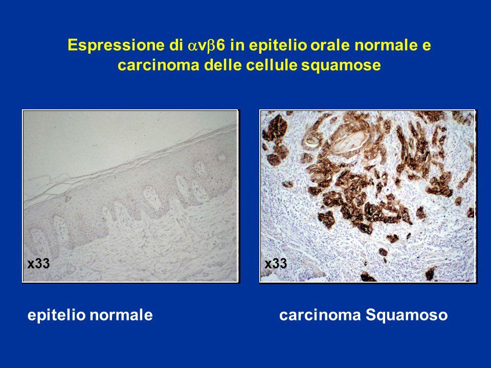 Espressione di  v  6 in epitelio orale normale e carcinoma delle cellule squamose epitelio normale carcinoma Squamoso x33