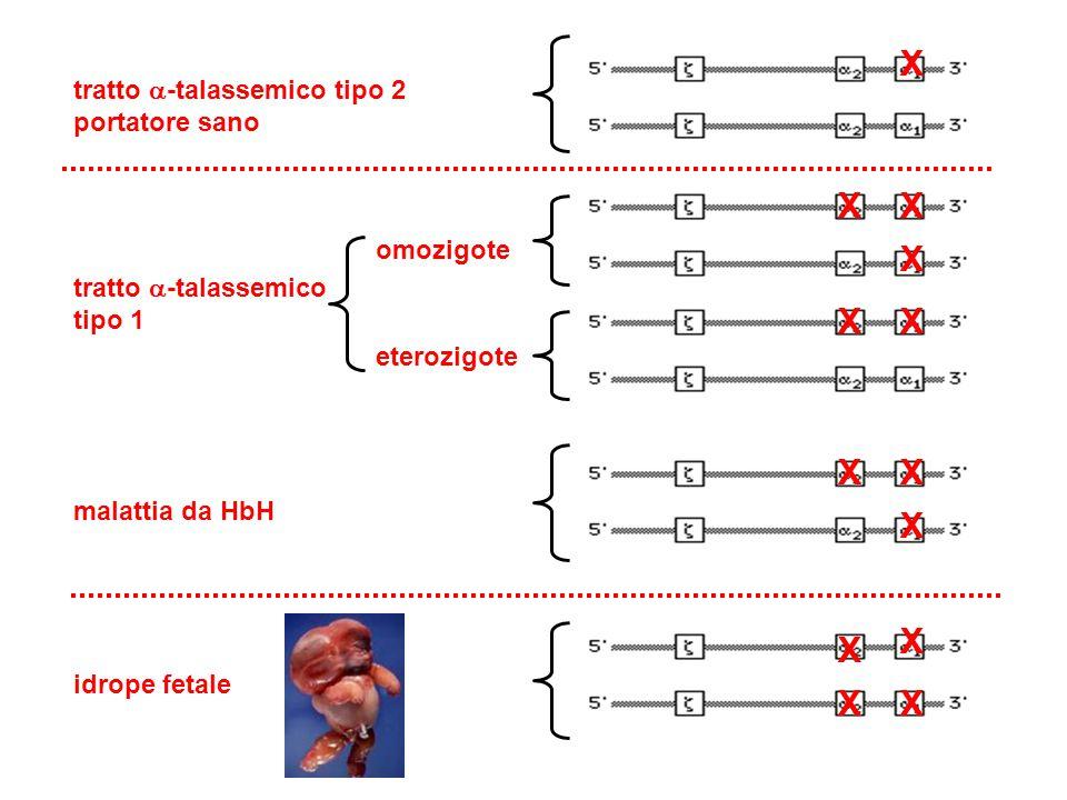 tratto  -talassemico tipo 2 portatore sano tratto  -talassemico tipo 1 malattia da HbH idrope fetale X XX X X X X X omozigote eterozigote X X XX X