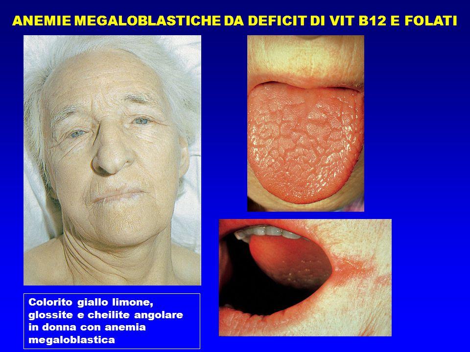 ANEMIE MEGALOBLASTICHE DA DEFICIT DI VIT B12 E FOLATI Colorito giallo limone, glossite e cheilite angolare in donna con anemia megaloblastica