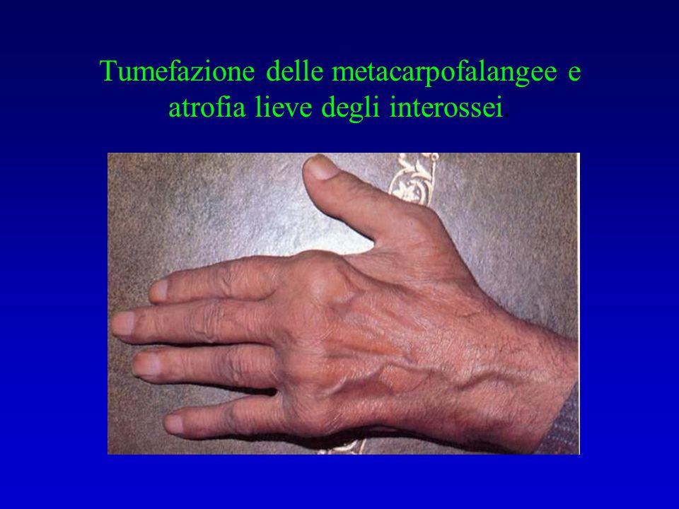 Tumefazione delle metacarpofalangee e atrofia lieve degli interossei.