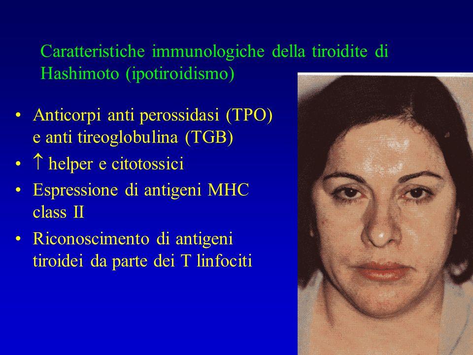 Caratteristiche immunologiche della tiroidite di Hashimoto (ipotiroidismo) Anticorpi anti perossidasi (TPO) e anti tireoglobulina (TGB)  helper e cit