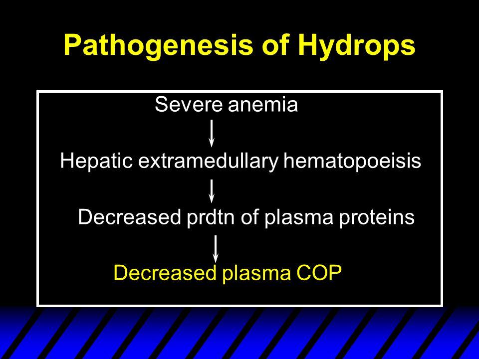 Pathogenesis of Hydrops Severe anemia Hepatic extramedullary hematopoeisis Decreased prdtn of plasma proteins Decreased plasma COP