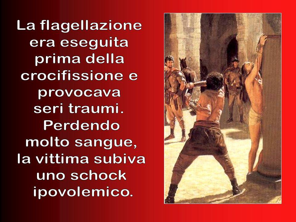 Allora Pilato fece prendere Gesù e lo fece flagellare. ( Gv 19, 1)