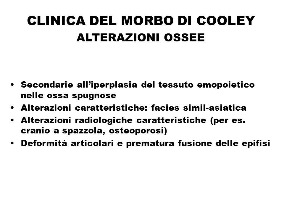 CLINICA DEL MORBO DI COOLEY ALTERAZIONI OSSEE Secondarie all'iperplasia del tessuto emopoietico nelle ossa spugnose Alterazioni caratteristiche: facie