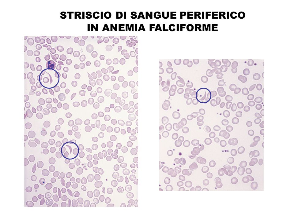 STRISCIO DI SANGUE PERIFERICO IN ANEMIA FALCIFORME