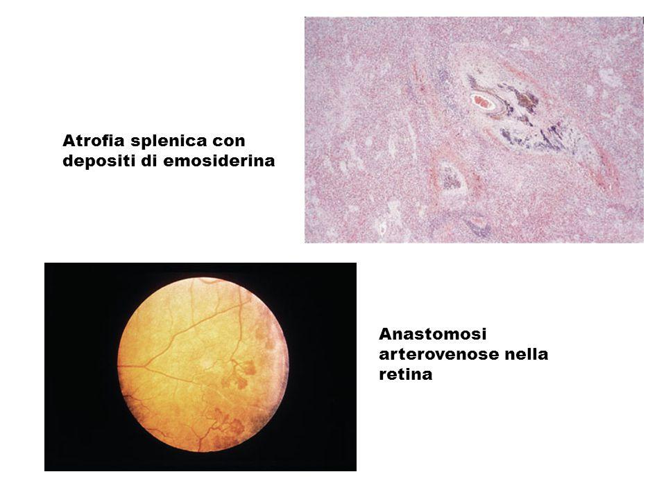 Anastomosi arterovenose nella retina Atrofia splenica con depositi di emosiderina