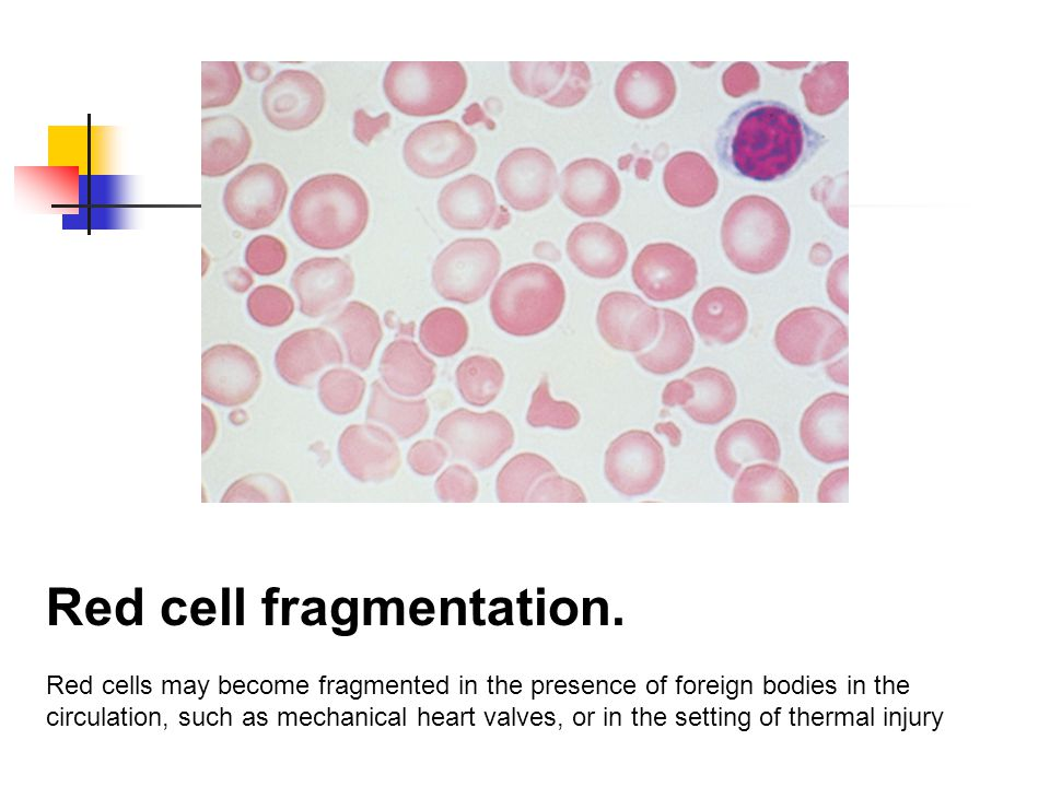 Echinociti The red cells in uremia may acquire numerous regularly spaced, small, spiny projections.