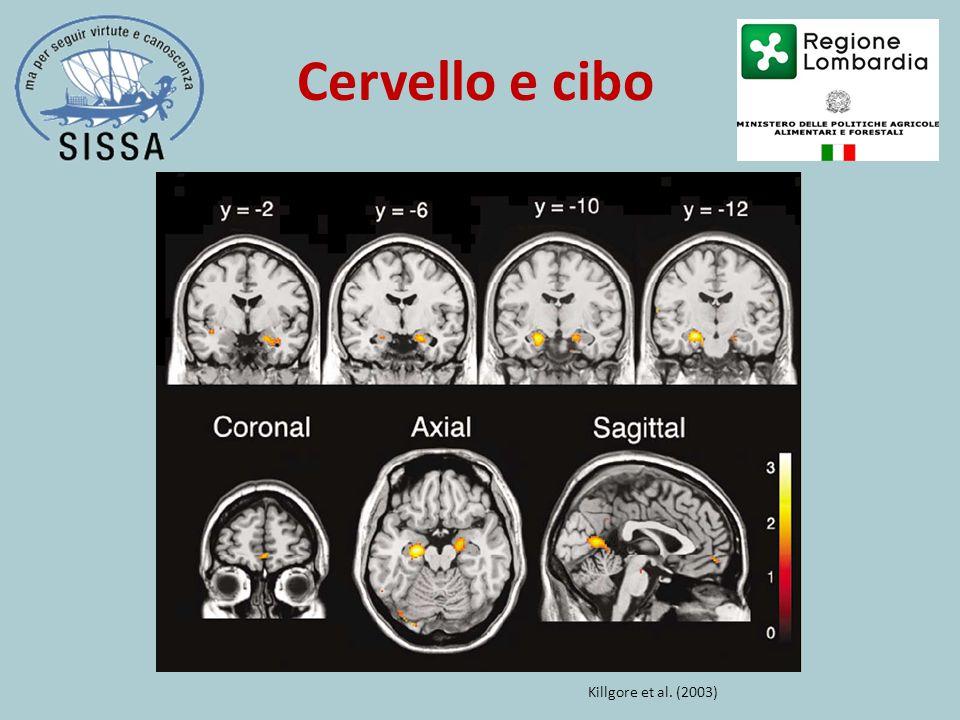 Cervello e cibo Killgore et al. (2003)