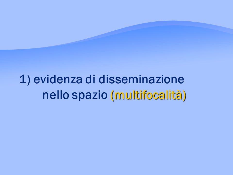 (multifocalità) 1) evidenza di disseminazione nello spazio (multifocalità)