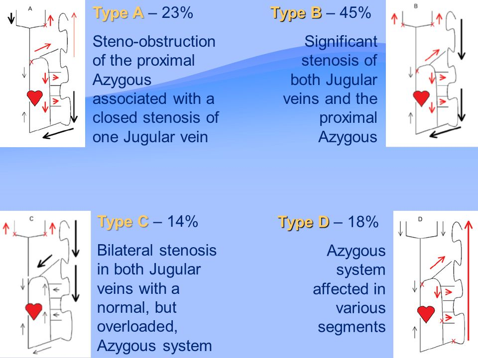 Type A Type A – 23% Steno-obstruction of the proximal Azygous associated with a closed stenosis of one Jugular vein Type B Type B – 45% Significant stenosis of both Jugular veins and the proximal Azygous Type C Type C – 14% Bilateral stenosis in both Jugular veins with a normal, but overloaded, Azygous system Type D Type D – 18% Azygous system affected in various segments