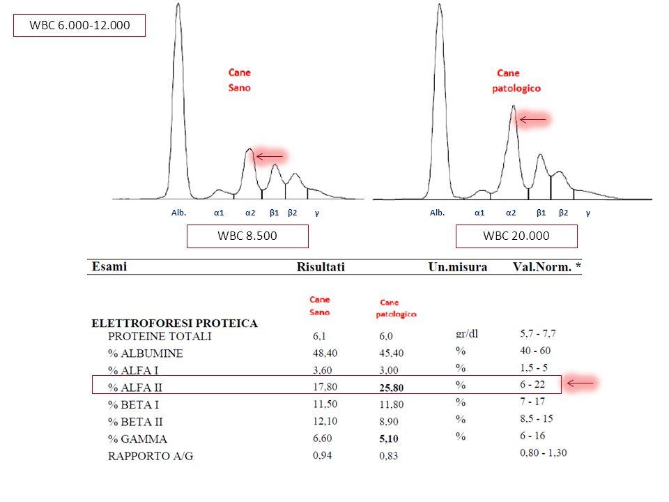 WBC 8.500WBC 20.000 WBC 6.000-12.000 Alb. α1 α2 β1 β2 γ