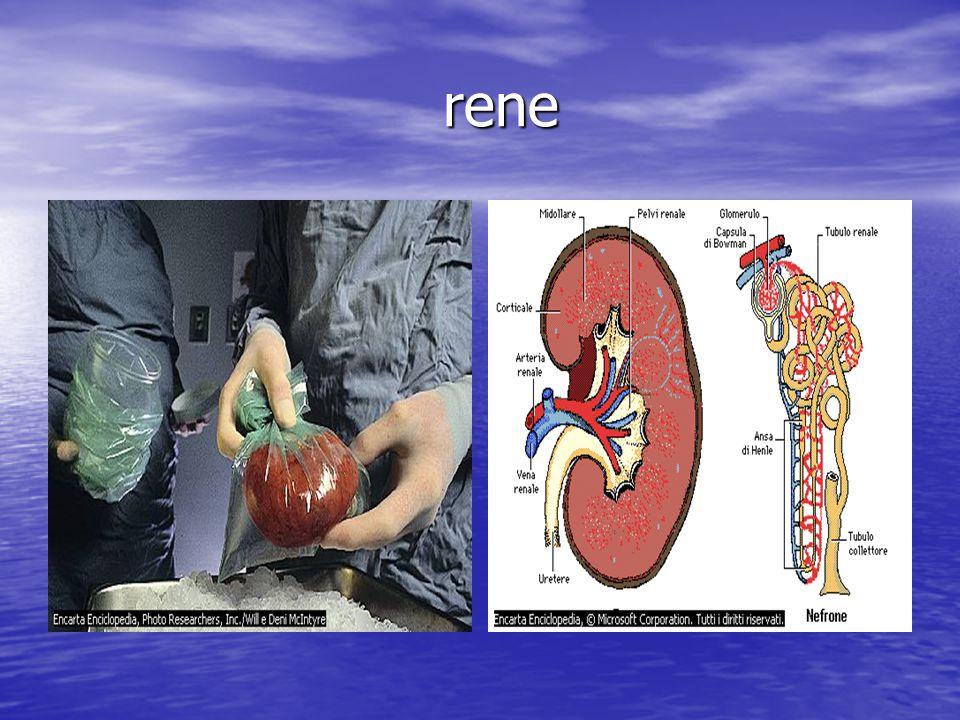 appendicite appendicite