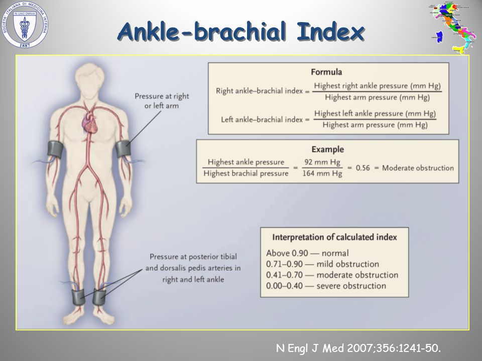 N Engl J Med 2007;356:1241-50. Ankle-brachial Index
