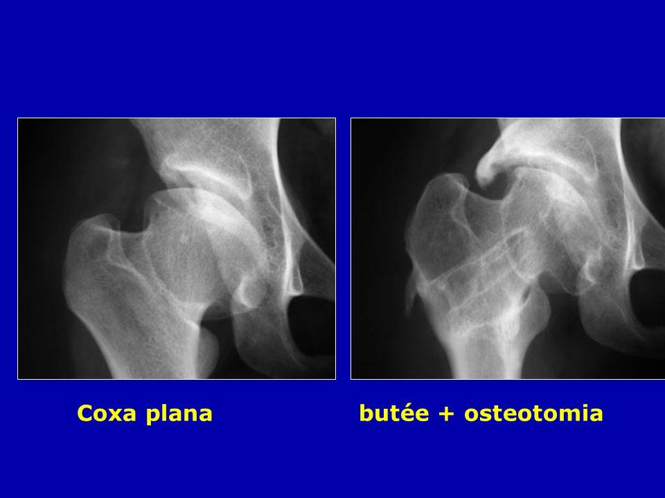 Coxa plana butée + osteotomia