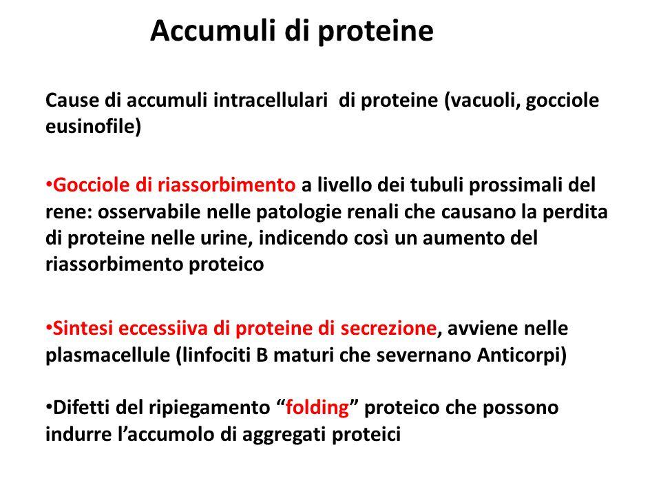 Accumuli di proteine Cause di accumuli intracellulari di proteine (vacuoli, gocciole eusinofile) Gocciole di riassorbimento a livello dei tubuli pross