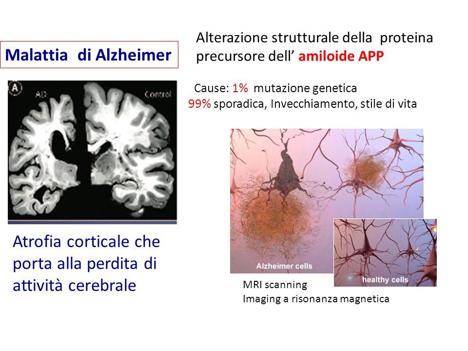 Malattia di Alzheimer Atrofia corticale che porta alla perdita di attività cerebrale Alterazione strutturale della proteina precursore dell' amiloide
