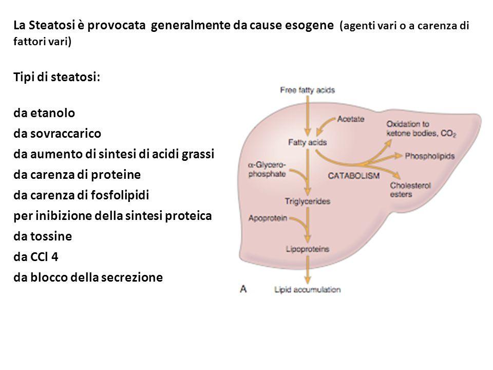La Steatosi è provocata generalmente da cause esogene (agenti vari o a carenza di fattori vari) Tipi di steatosi: da etanolo da sovraccarico da aument